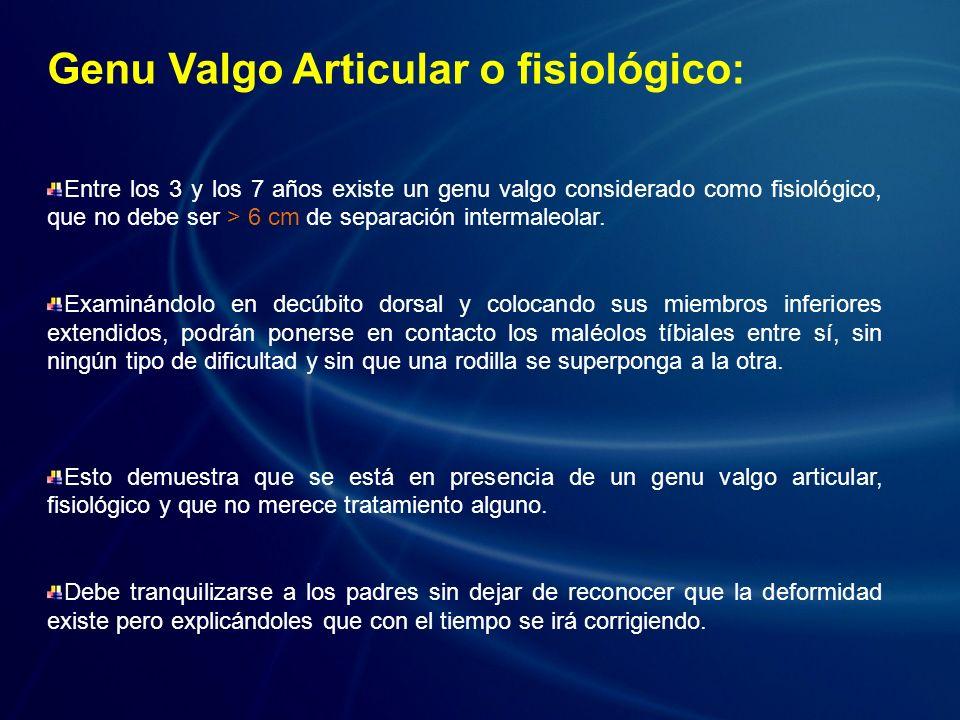 Genu Valgo Articular o fisiológico: