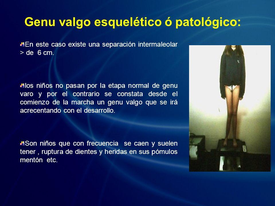 Genu valgo esquelético ó patológico: