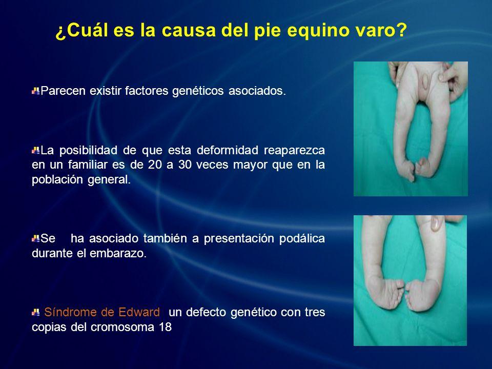 ¿Cuál es la causa del pie equino varo