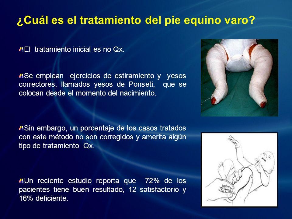 ¿Cuál es el tratamiento del pie equino varo