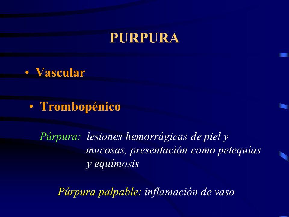 PURPURA Vascular.