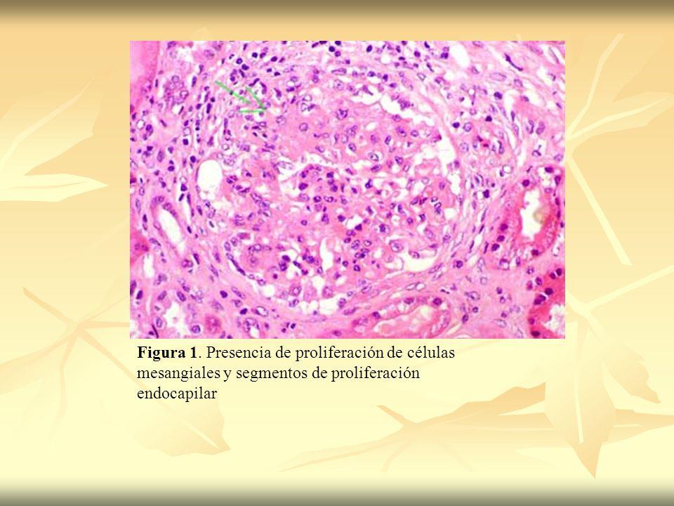 Figura 1. Presencia de proliferación de células mesangiales y segmentos de proliferación endocapilar
