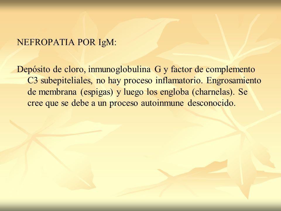 NEFROPATIA POR IgM:
