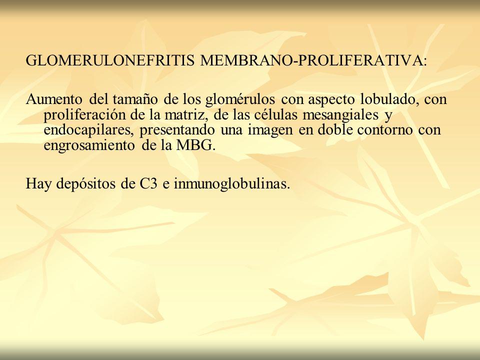 GLOMERULONEFRITIS MEMBRANO-PROLIFERATIVA:
