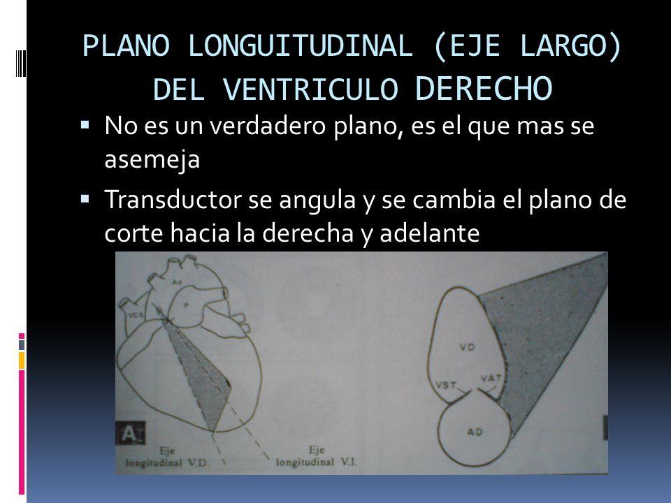 PLANO LONGUITUDINAL (EJE LARGO) DEL VENTRICULO DERECHO