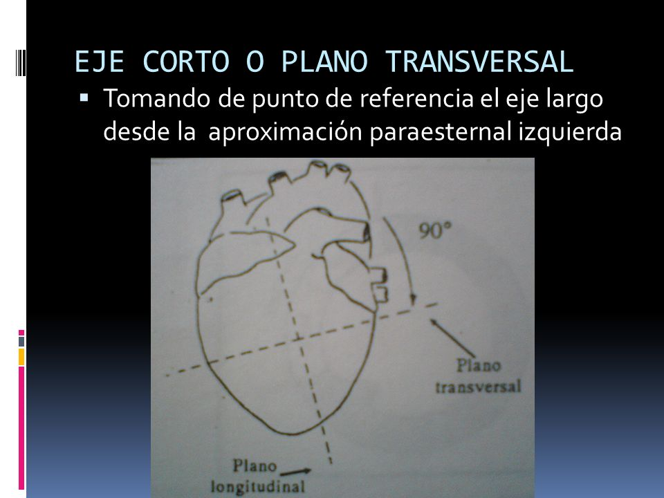 EJE CORTO O PLANO TRANSVERSAL