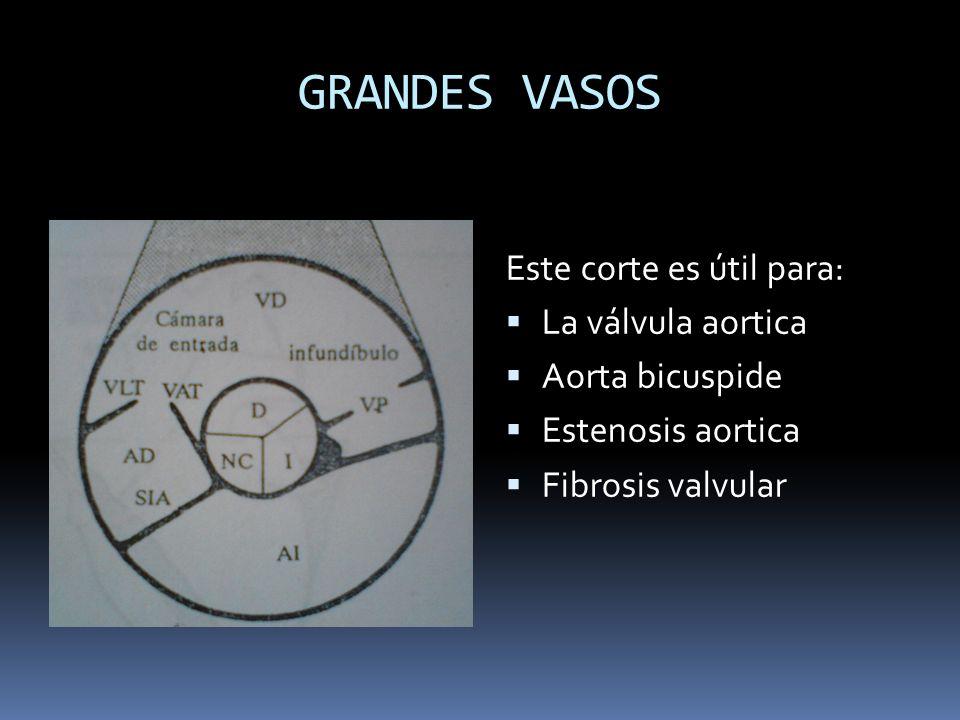 GRANDES VASOS Este corte es útil para: La válvula aortica