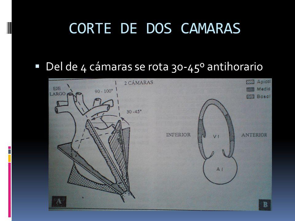 CORTE DE DOS CAMARAS Del de 4 cámaras se rota 30-45º antihorario