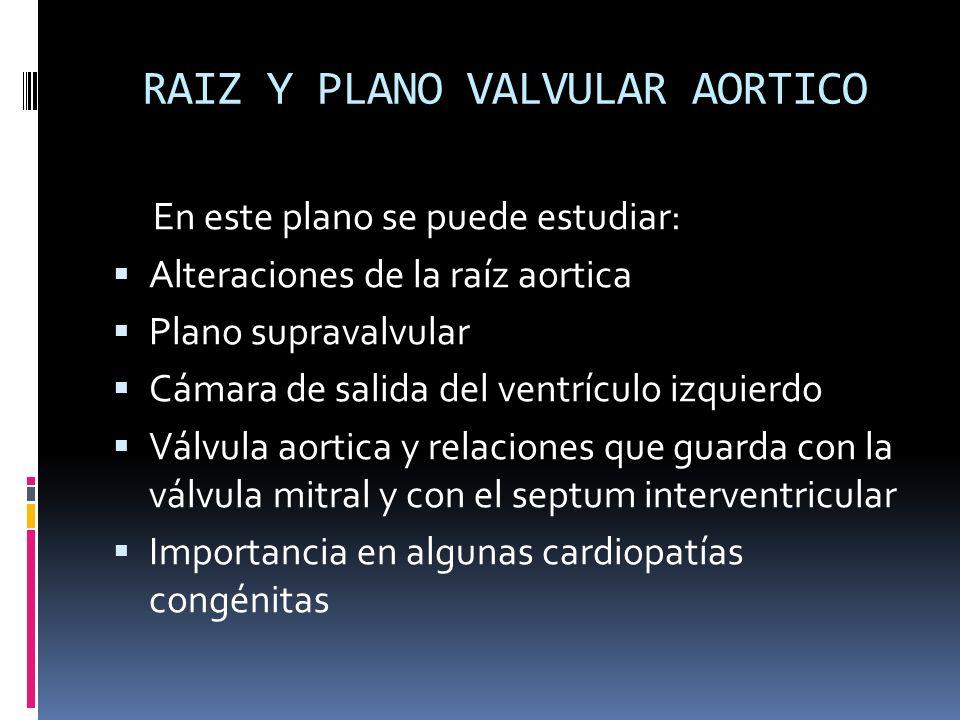 RAIZ Y PLANO VALVULAR AORTICO