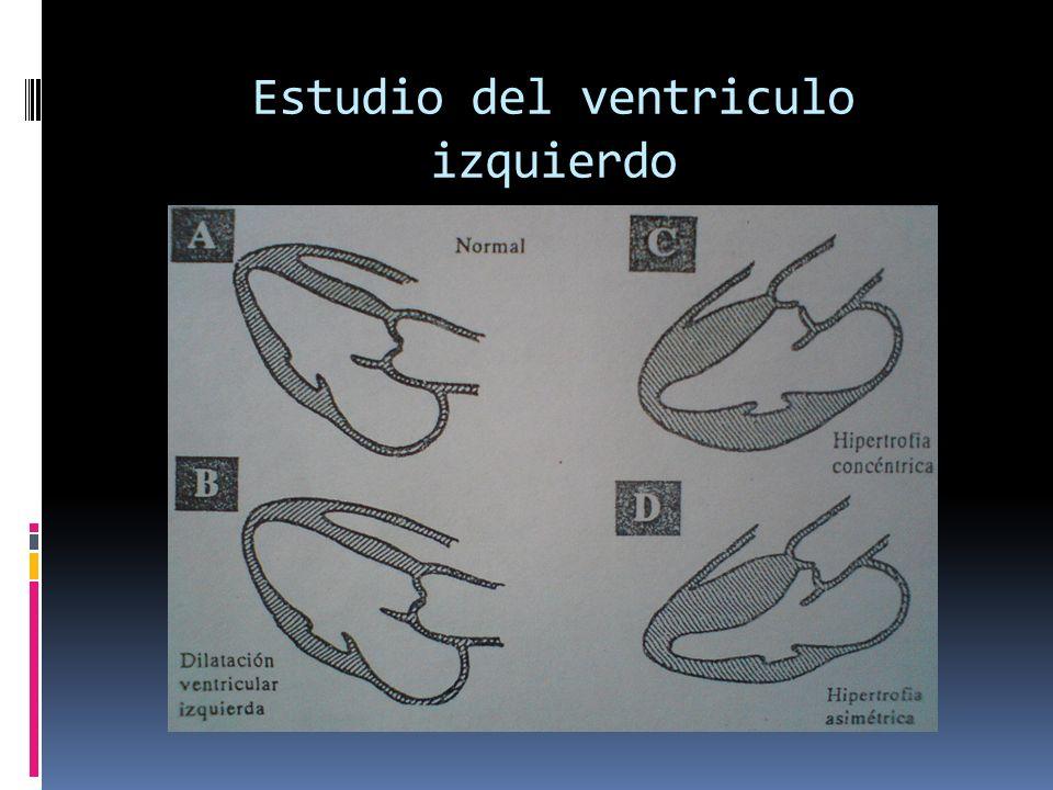Estudio del ventriculo izquierdo