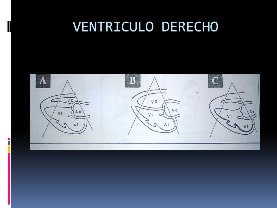 VENTRICULO DERECHO