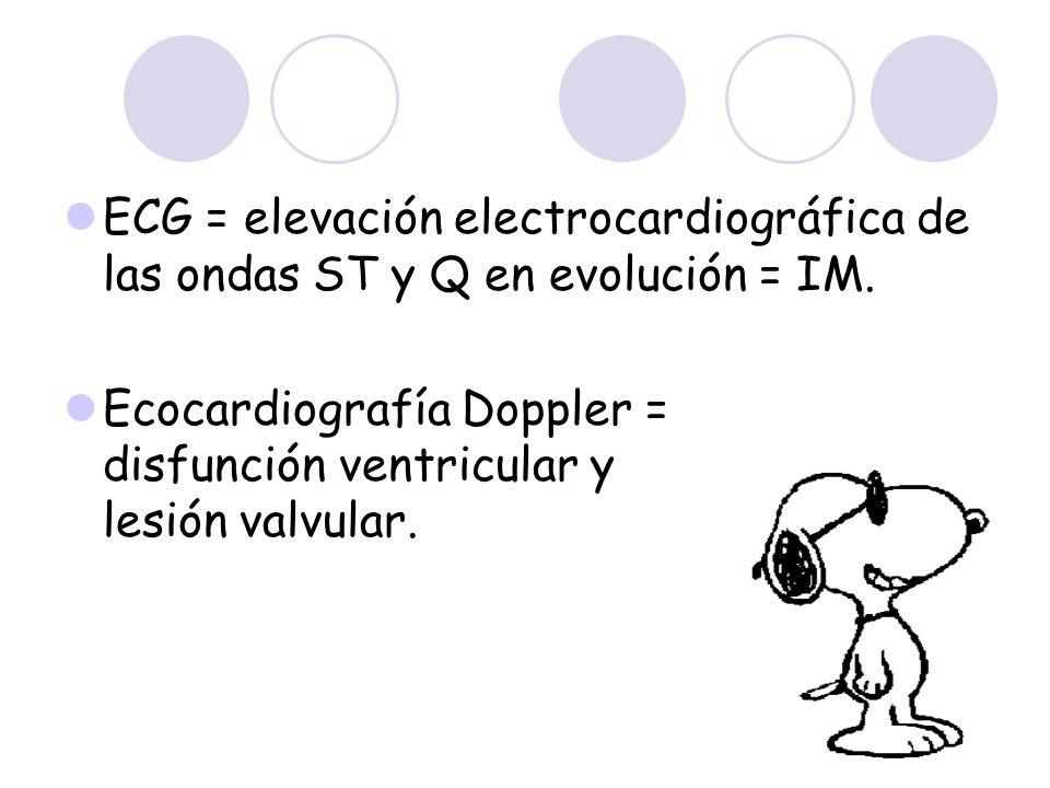 ECG = elevación electrocardiográfica de las ondas ST y Q en evolución = IM.