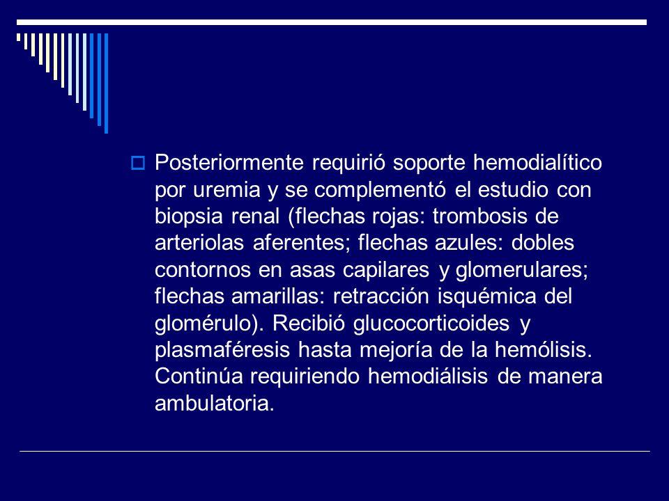Posteriormente requirió soporte hemodialítico por uremia y se complementó el estudio con biopsia renal (flechas rojas: trombosis de arteriolas aferentes; flechas azules: dobles contornos en asas capilares y glomerulares; flechas amarillas: retracción isquémica del glomérulo).