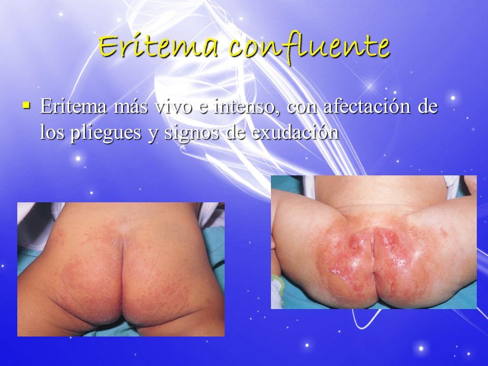 Eritema confluente Eritema más vivo e intenso, con afectación de los pliegues y signos de exudación