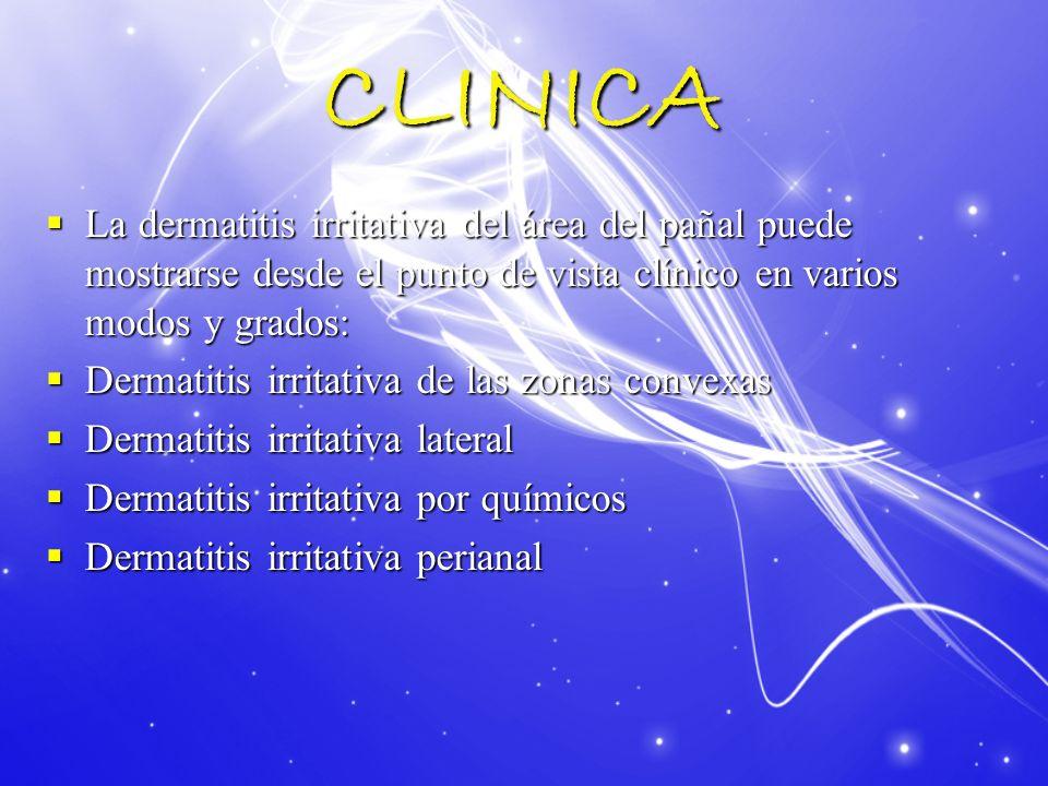 CLINICA La dermatitis irritativa del área del pañal puede mostrarse desde el punto de vista clínico en varios modos y grados: