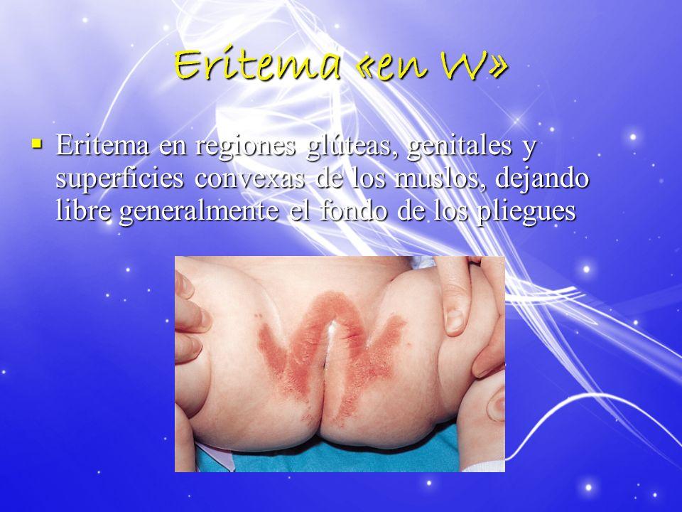 Eritema «en W»Eritema en regiones glúteas, genitales y superficies convexas de los muslos, dejando libre generalmente el fondo de los pliegues.