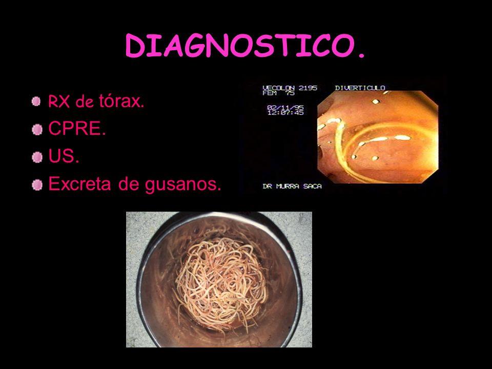 DIAGNOSTICO. RX de tórax. CPRE. US. Excreta de gusanos.