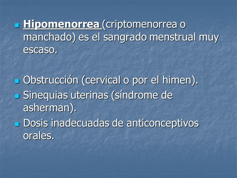 Hipomenorrea (criptomenorrea o manchado) es el sangrado menstrual muy escaso.