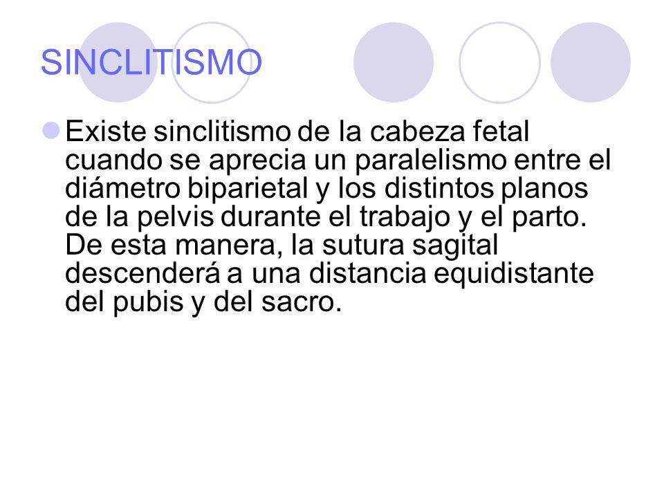 SINCLITISMO