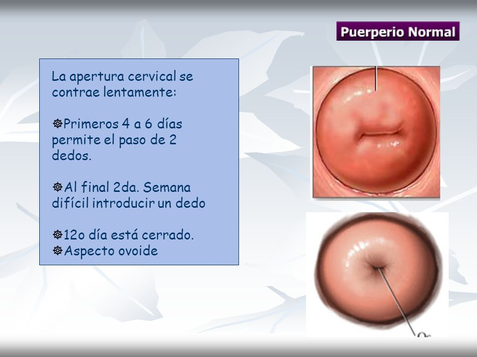 La apertura cervical se contrae lentamente: