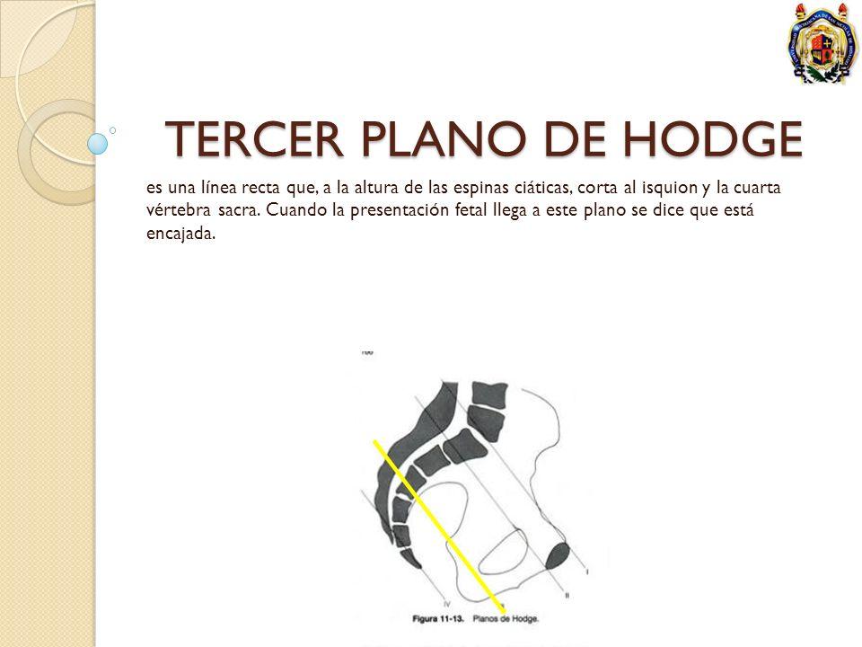 TERCER PLANO DE HODGE