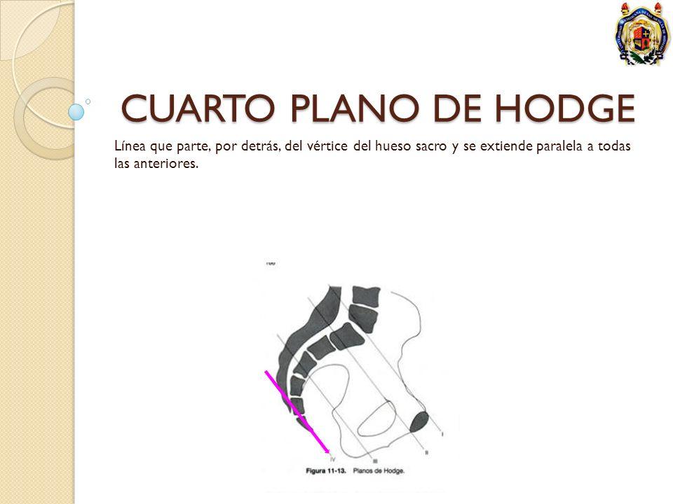 CUARTO PLANO DE HODGE Línea que parte, por detrás, del vértice del hueso sacro y se extiende paralela a todas las anteriores.