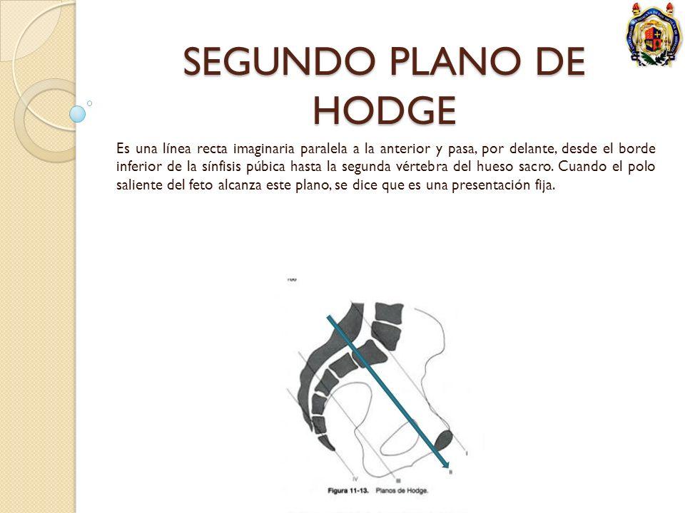 SEGUNDO PLANO DE HODGE