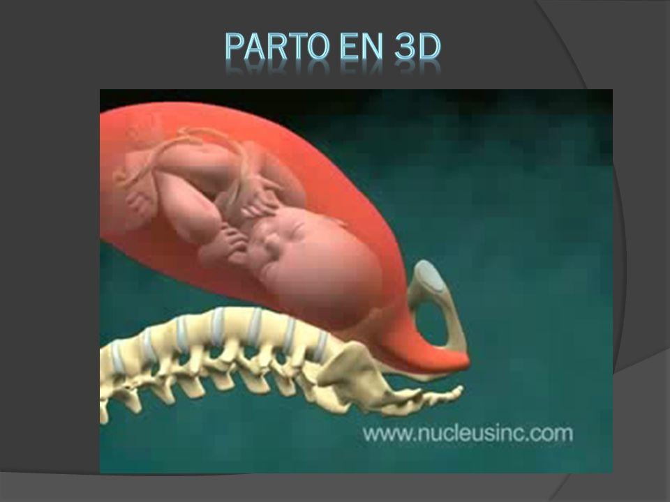 PARTO EN 3D