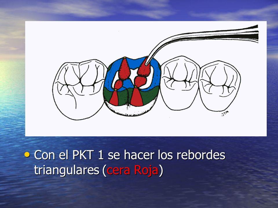 Con el PKT 1 se hacer los rebordes triangulares (cera Roja)