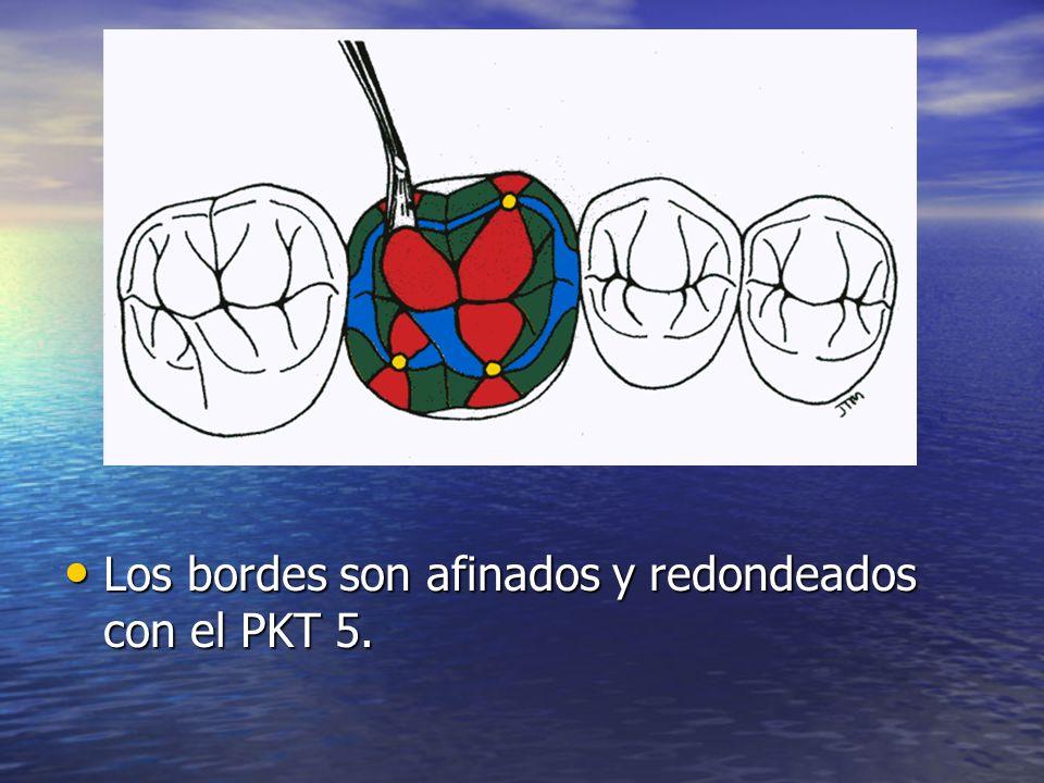 Los bordes son afinados y redondeados con el PKT 5.