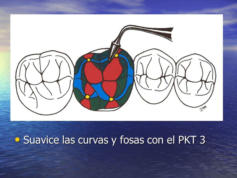 Suavice las curvas y fosas con el PKT 3
