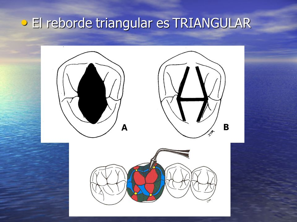 El reborde triangular es TRIANGULAR
