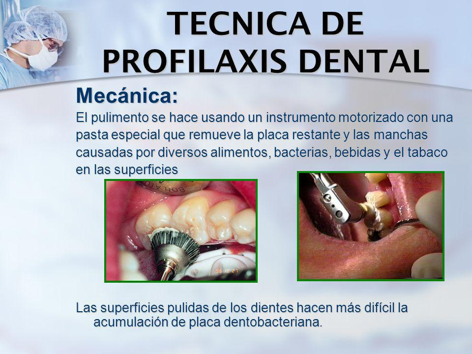 TECNICA DE PROFILAXIS DENTAL