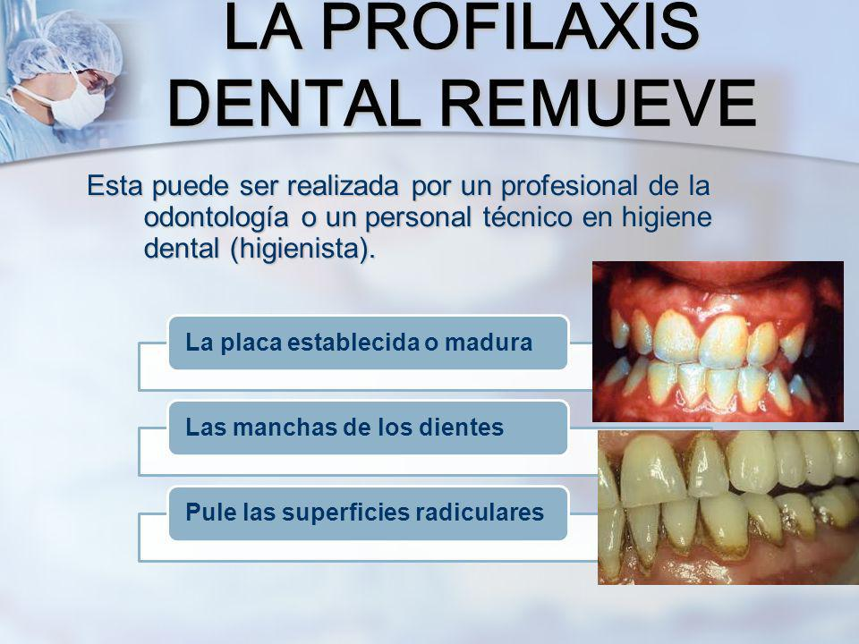 LA PROFILAXIS DENTAL REMUEVE
