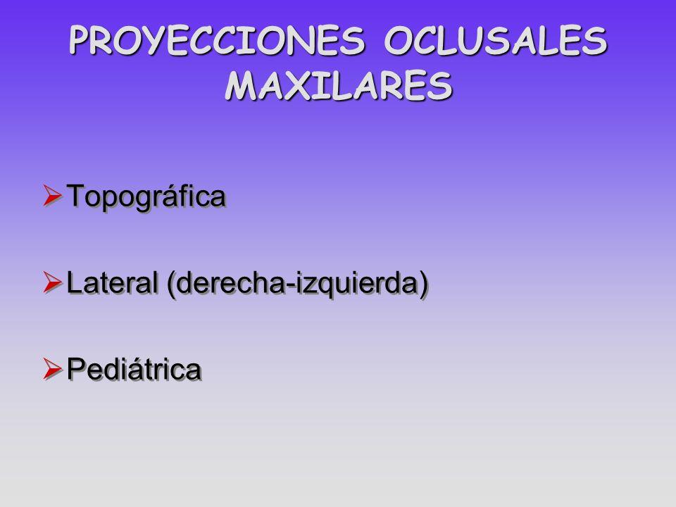 PROYECCIONES OCLUSALES MAXILARES