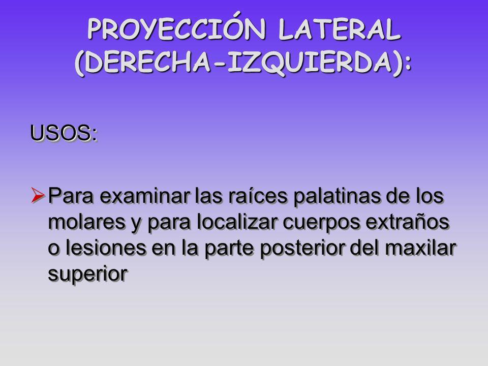PROYECCIÓN LATERAL (DERECHA-IZQUIERDA):
