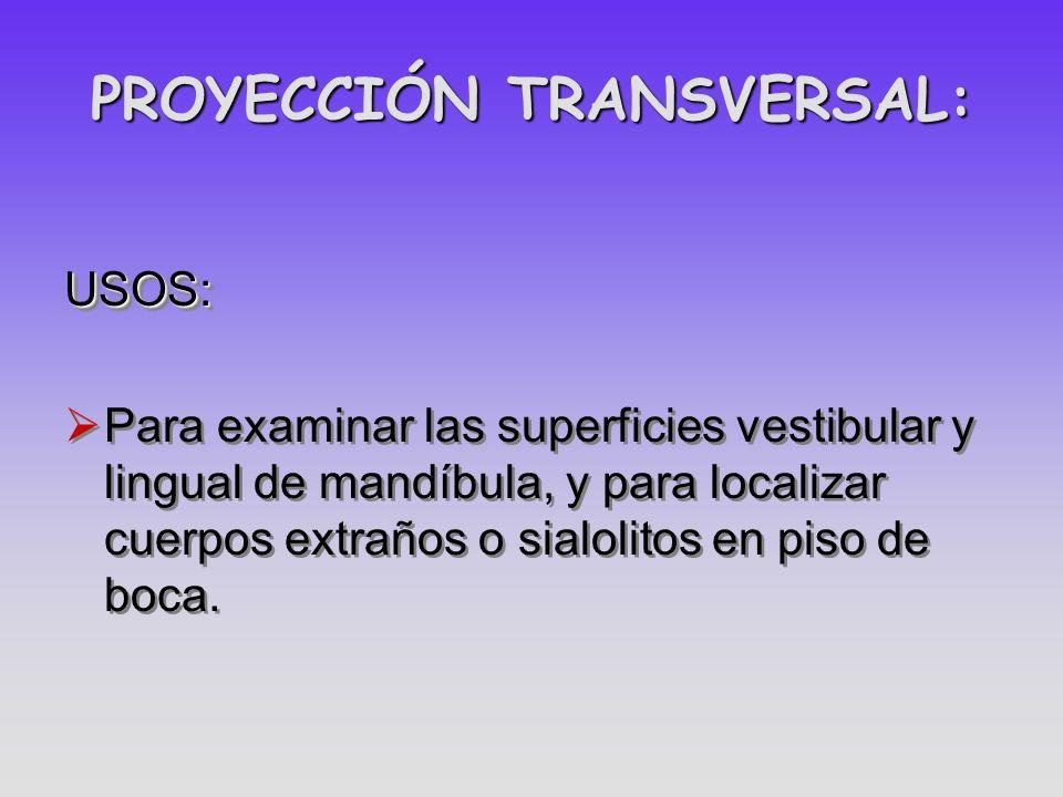 PROYECCIÓN TRANSVERSAL: