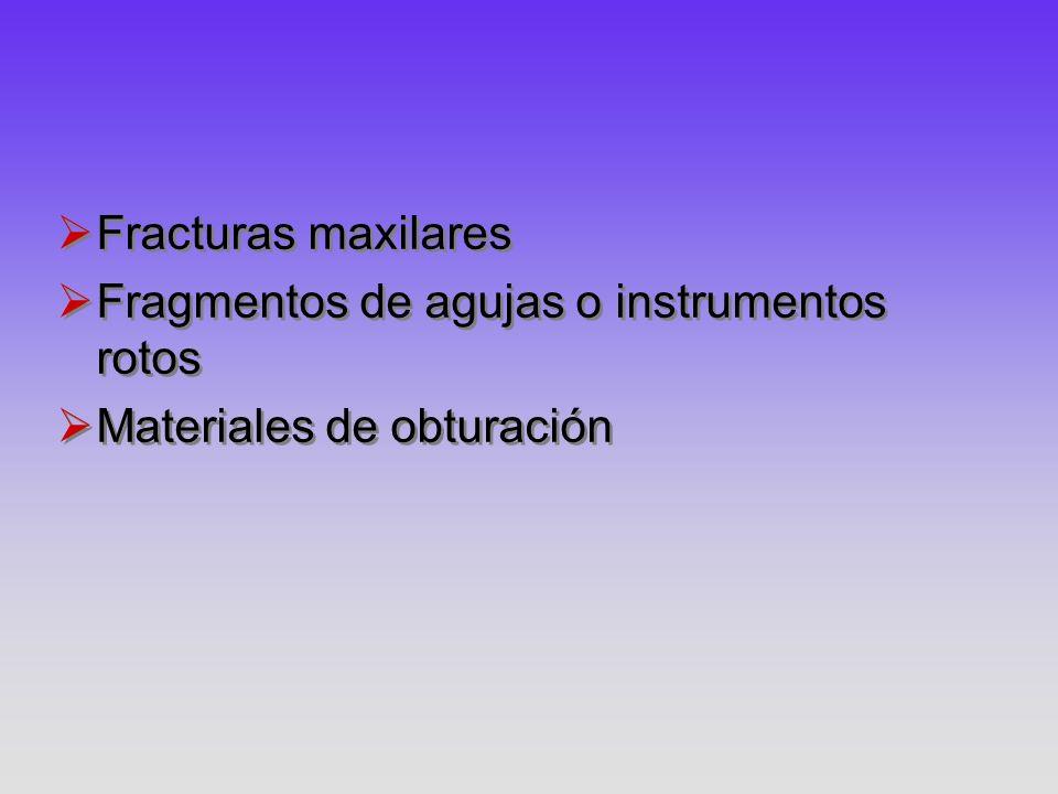 Fracturas maxilares Fragmentos de agujas o instrumentos rotos Materiales de obturación