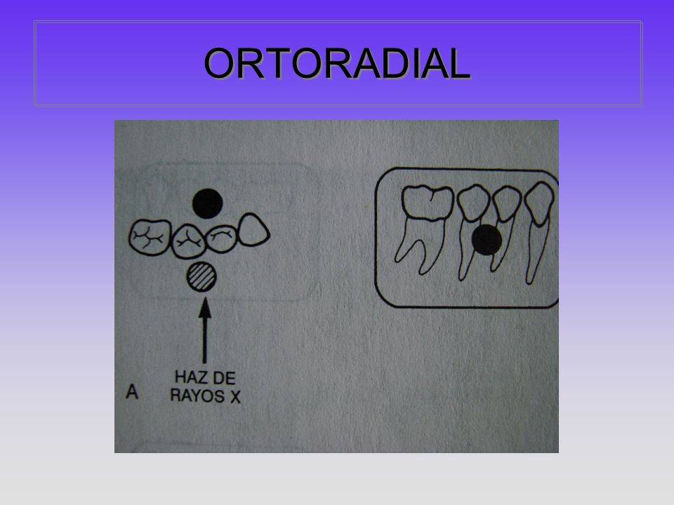ORTORADIAL