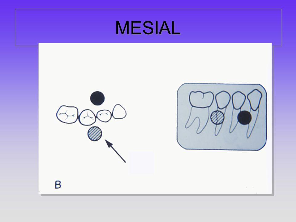 MESIAL
