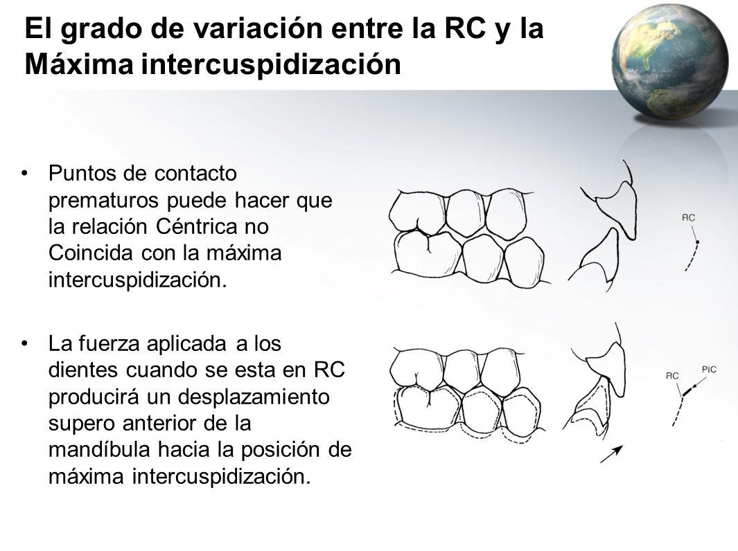 El grado de variación entre la RC y la Máxima intercuspidización