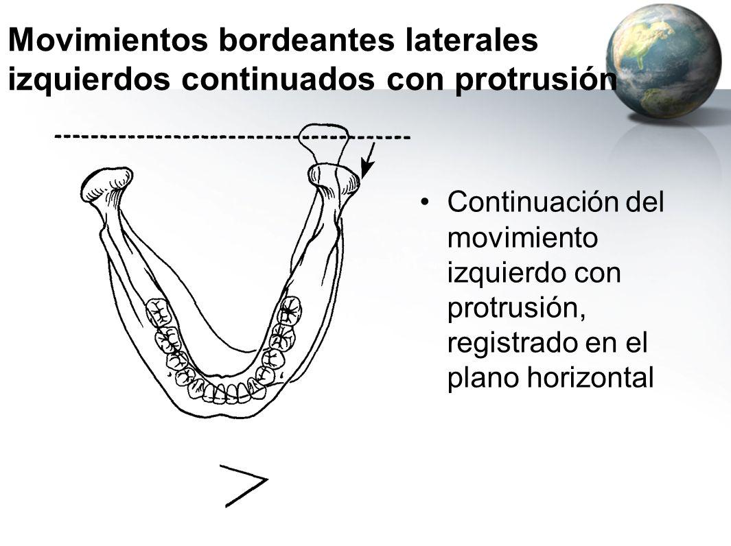 Movimientos bordeantes laterales izquierdos continuados con protrusión