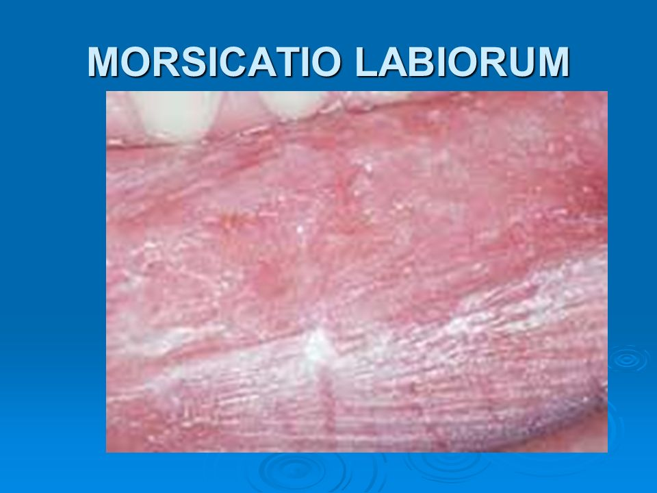 MORSICATIO LABIORUM