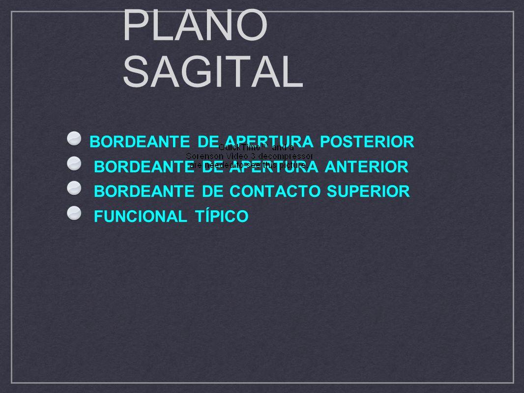 PLANO SAGITAL BORDEANTE DE APERTURA POSTERIOR