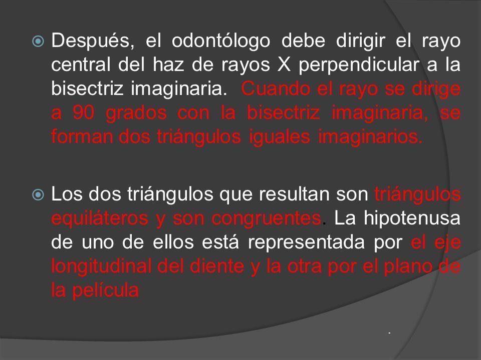 Después, el odontólogo debe dirigir el rayo central del haz de rayos X perpendicular a la bisectriz imaginaria. Cuando el rayo se dirige a 90 grados con la bisectriz imaginaria, se forman dos triángulos iguales imaginarios.