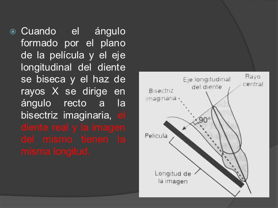 Cuando el ángulo formado por el plano de la película y el eje longitudinal del diente se biseca y el haz de rayos X se dirige en ángulo recto a la bisectriz imaginaria, el diente real y la imagen del mismo tienen la misma longitud.