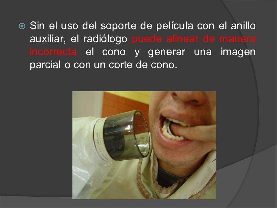 Sin el uso del soporte de película con el anillo auxiliar, el radiólogo puede alinear de manera incorrecta el cono y generar una imagen parcial o con un corte de cono.