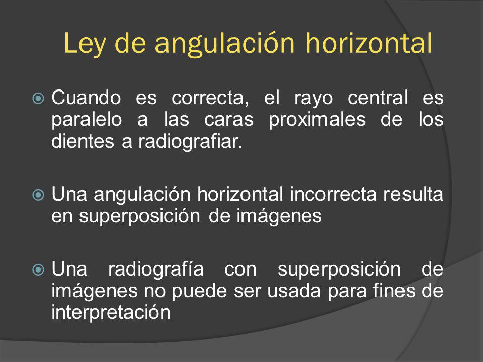 Ley de angulación horizontal