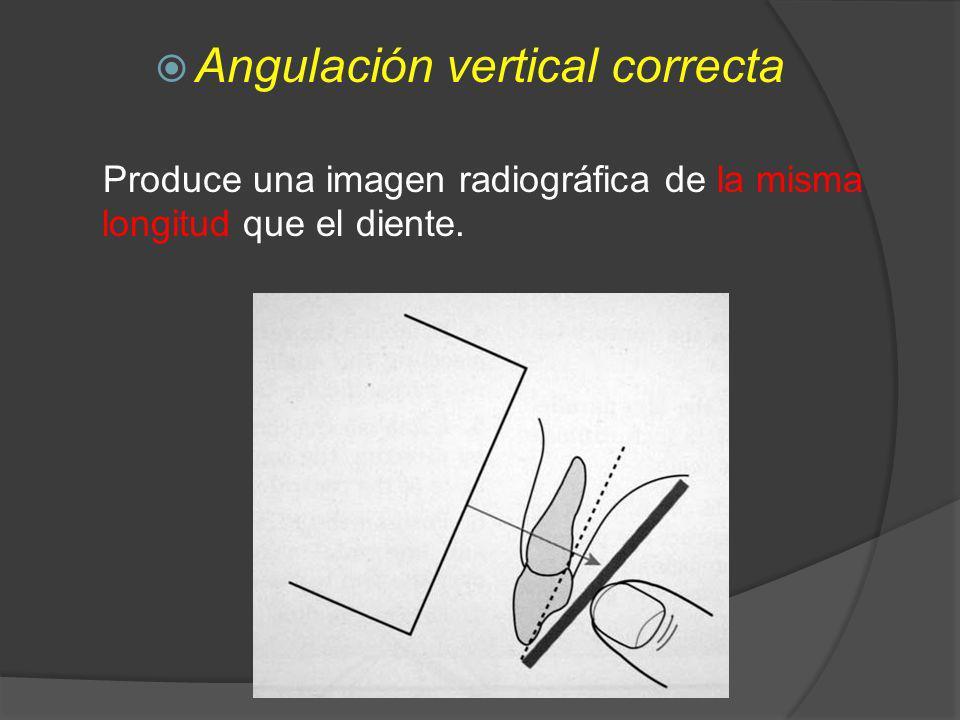 Angulación vertical correcta