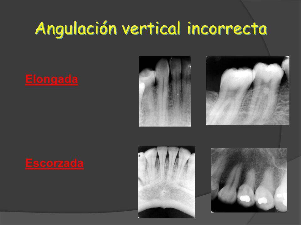 Angulación vertical incorrecta